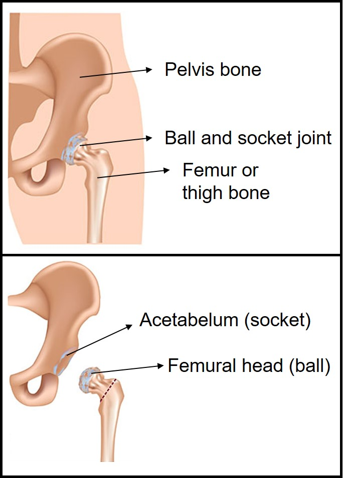 The W And H Of Total Hip Replacement All Things Biomaterials